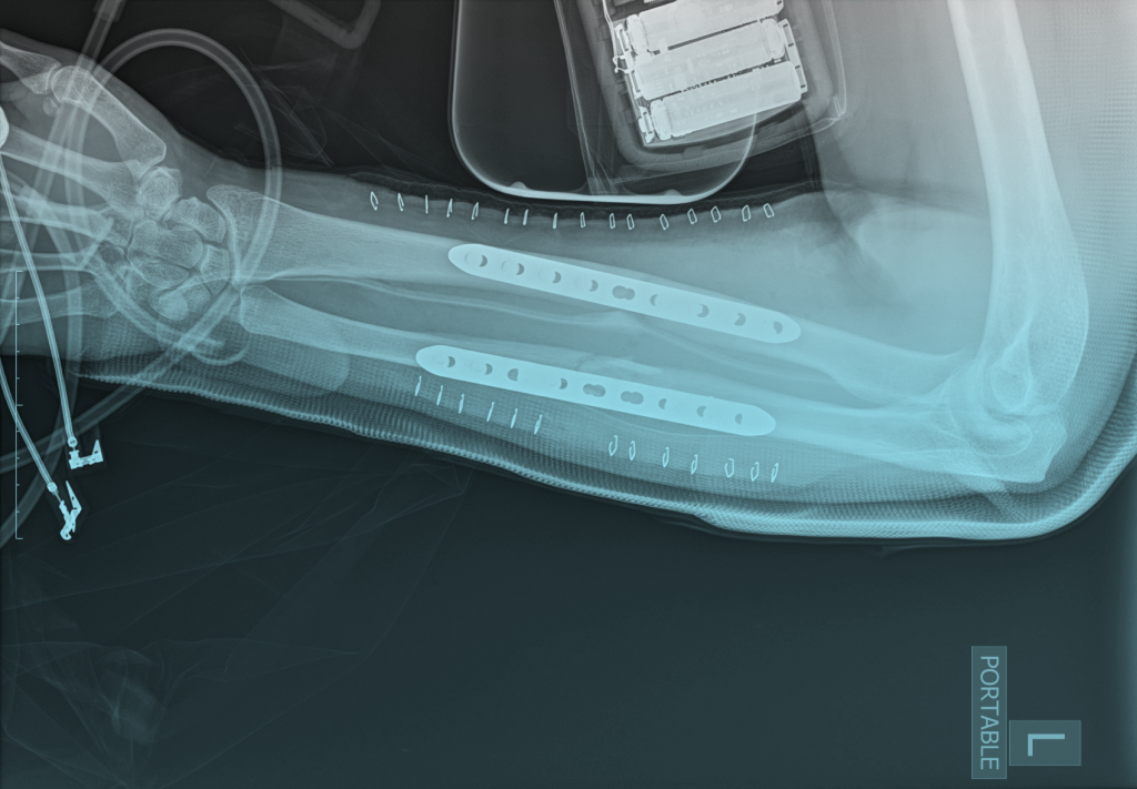 Left arm x-ray with plates